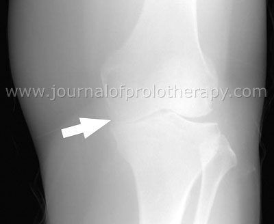 Figure 1. Knee X-ray before Prolozone™ showing severe medial joint space narrowing.